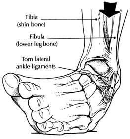 instabilidade ligamentos tornozelo